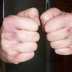 Wunde Fäuste nach dem Training